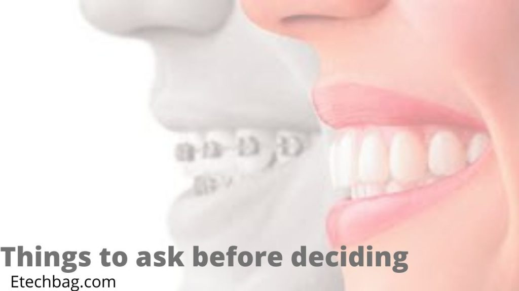how much is invisalign without insurance