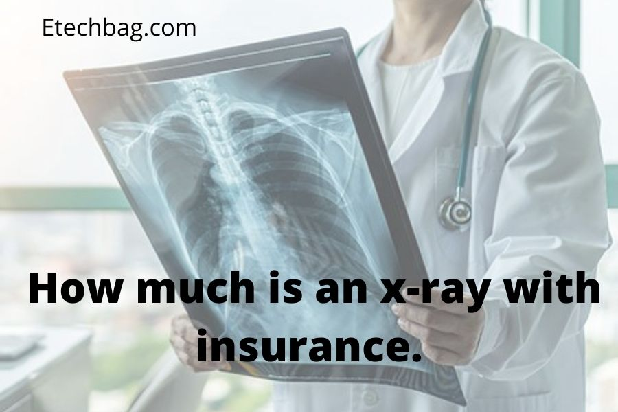 how much is an x-ray with insurance.